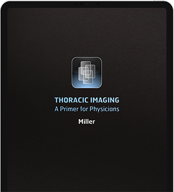 Cover Thoracic Primer on iPad