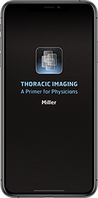 Contents Thoracic Primer on iPhone
